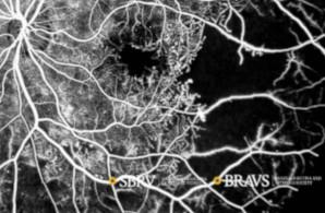 retinopatia-diabetica-proliferativa-novo