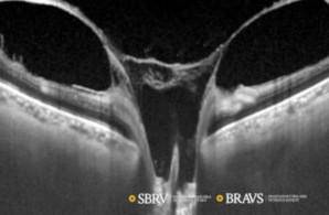 retinopatia-diabetica-proliferativa