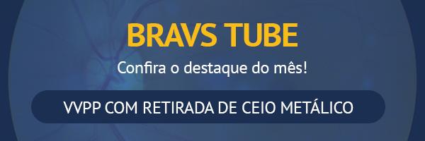preview-full-Topo_EMKT_BRAVS_TUBE
